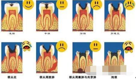 不同程度的龋齿怎么区分?